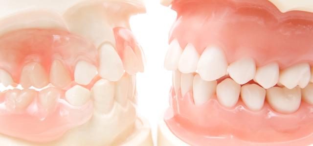 歯科口腔外科・欠損補綴