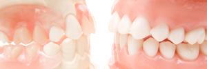 欠損補綴・口腔外科